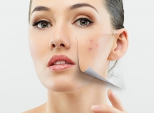 1Acne-Problems-For-Women-5